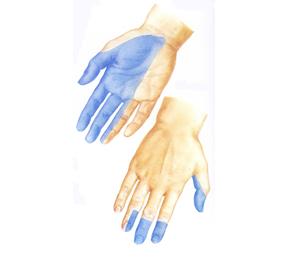 右手の正中神経の皮膚神経支配領域