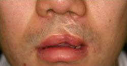 口唇口蓋裂センター