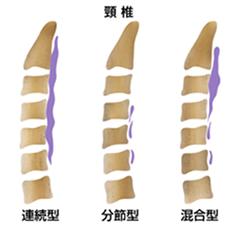 頸椎後縦靱帯骨化症の形態分類