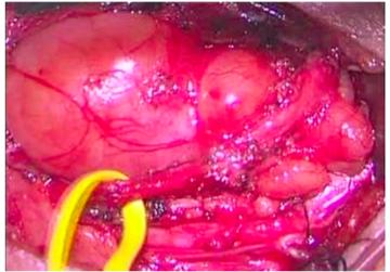 ダンベル型脊髄神経鞘腫
