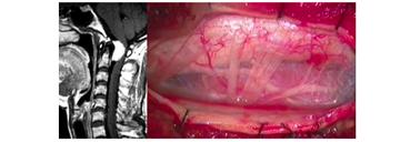 脊髄硬膜内髄外腫瘍(髄膜腫)