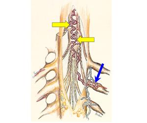 脊髄血管障害