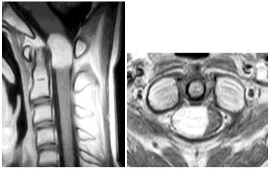 脊脊髄硬膜内髄外腫瘍(神経鞘腫)