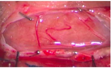 脊髄硬膜内髄外腫瘍(神経鞘腫)