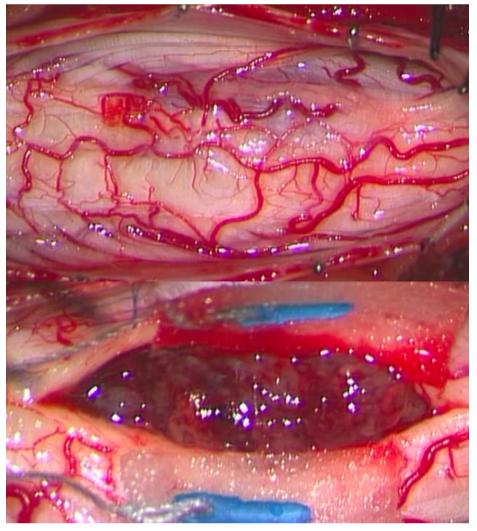 脊髄髄内腫瘍(上衣腫)