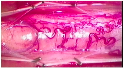 脊髄髄内腫瘍(星細胞腫)