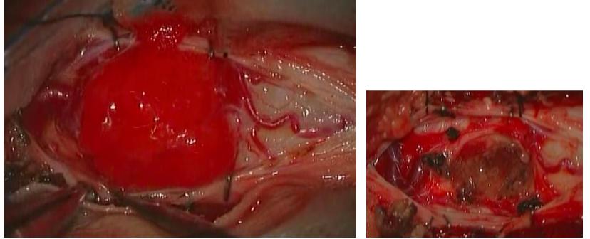 脊髄髄内腫瘍(脊髄血管芽腫)